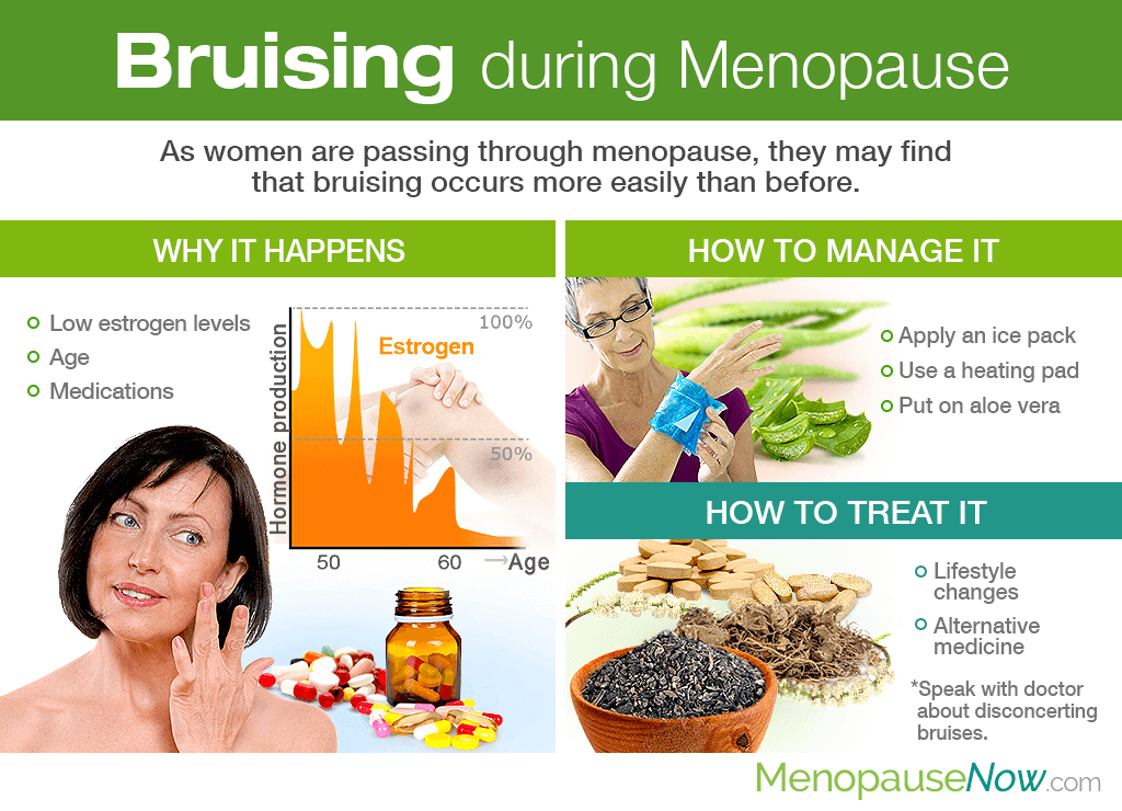 Bruising during Menopause