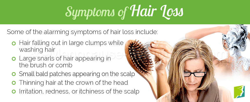 Symptoms of Hair Loss