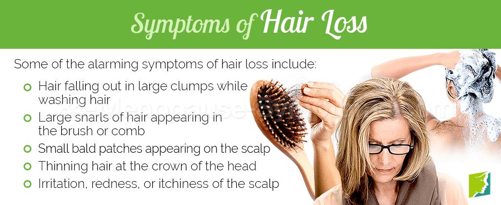 Symptoms of Hair Loss
