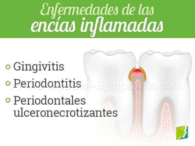 Enfermedades de las encías inflamadas