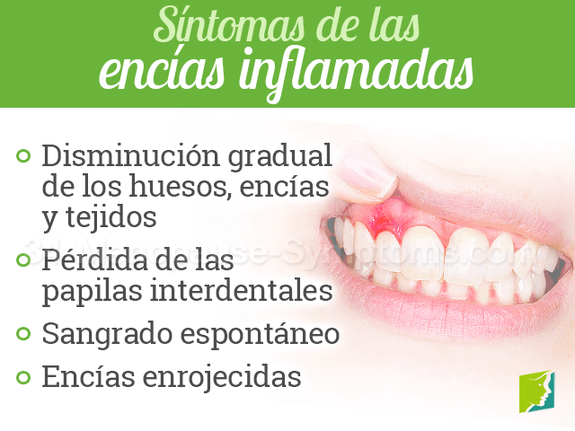 Síntomas de las encías inflamadas