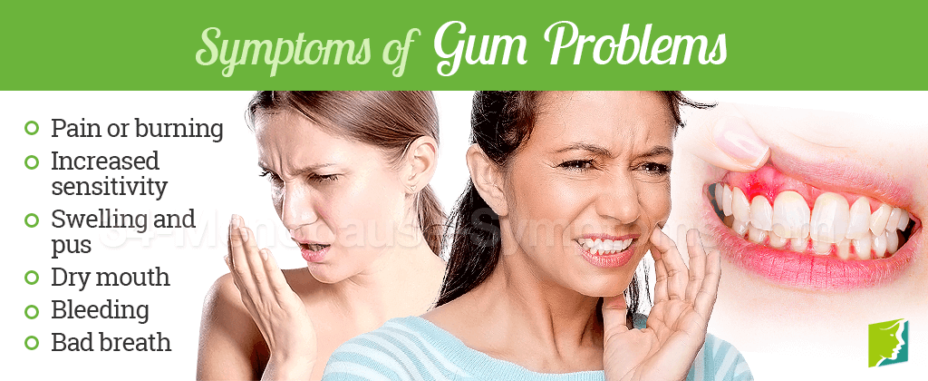 Symptoms of gum problems