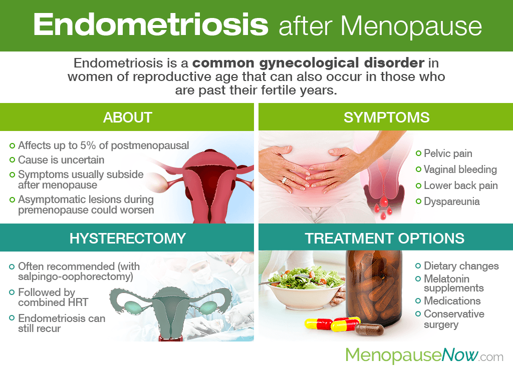 Endometriosis after Menopause