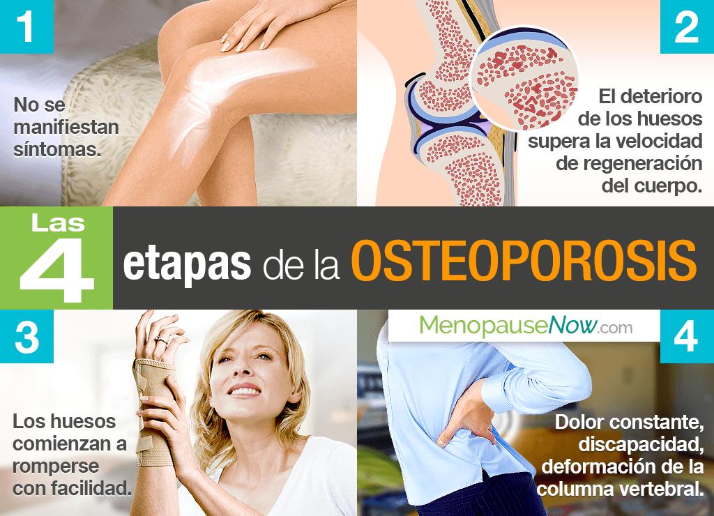Las 4 etapas de la osteoporosis