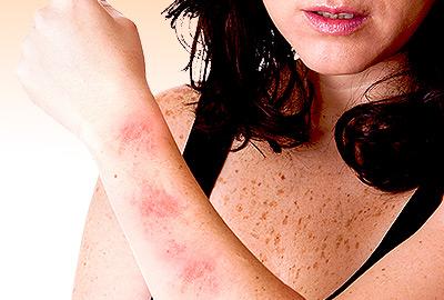 9 Types of Skin Rashes