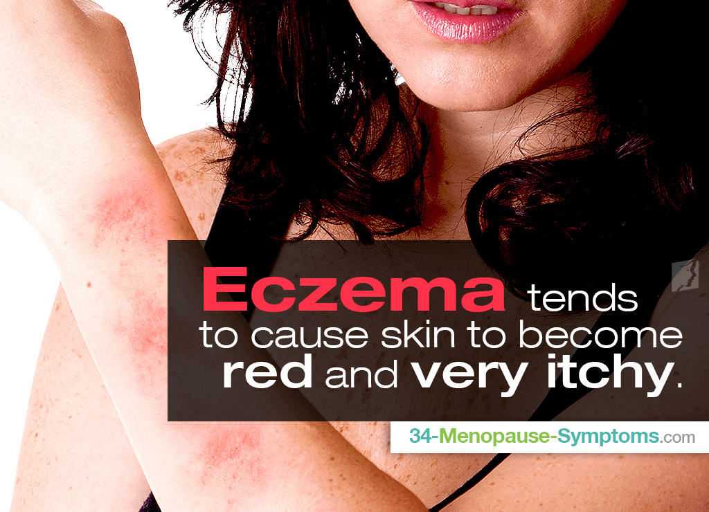 Eczema tends to cause skin to become red and very itchy.