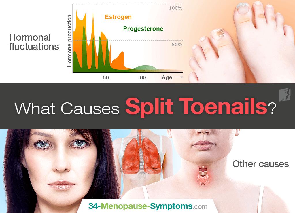 split toenail