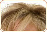 How to Manage Hair Loss during Menopause1