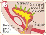How to Deal with Stress Incontinence in Postmenopause2