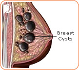 Breast cysts could be a cause of breast pain.