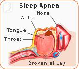 34MS-undstdng-slp-apnea2