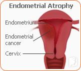 Endometrial Atrophy