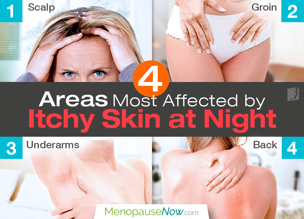 Areas most affected by itchy skin at night