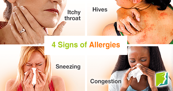 4 Signs of Allergies