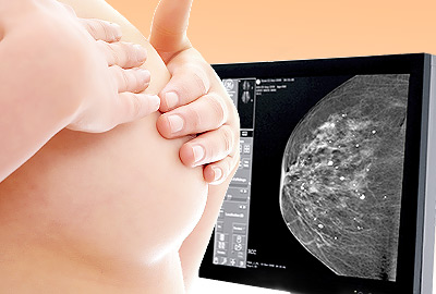 Breast Calcifications: Important to Know