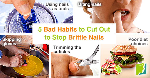 5 bad habits to cut out to stop brittle nails
