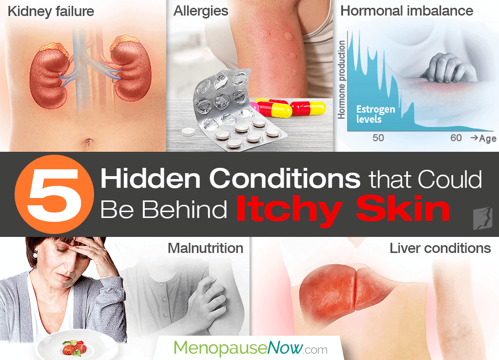 5 Hidden conditions that could be behind itchy skin.