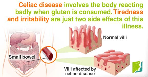 Fatigue is a side effect of celiac disease