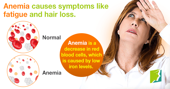 Anemia causes symptoms like fatigue and hair loss