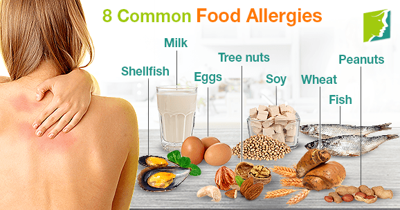 8 Common Food Allergies