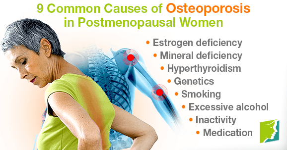 9 Common Causes of Osteoporosis in Postmenopausal Women