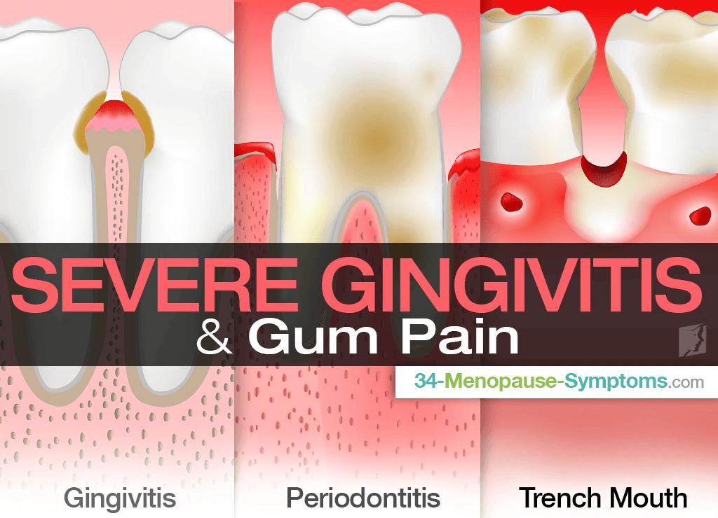 Severe Gingivitis & Gum Pain