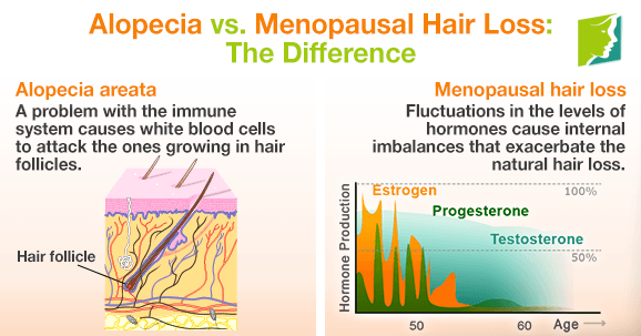 Alopecia vs. Menopausal Hair Loss: The Difference1