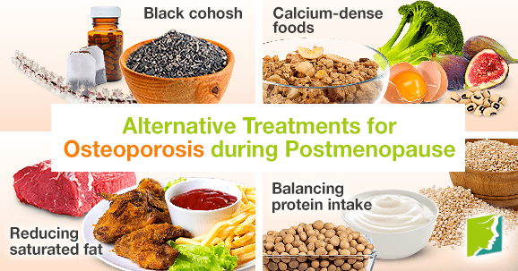 Alternative Treatments for Osteoporosis during Postmenopause