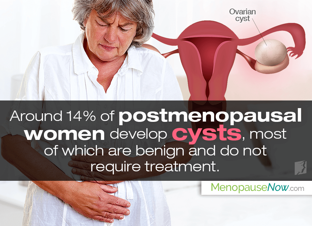 Are ovarian cysts common after menopause