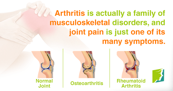 Arthritis is actually a family of musculoskeletal disorders, and joint pain is just on of its many symptoms.
