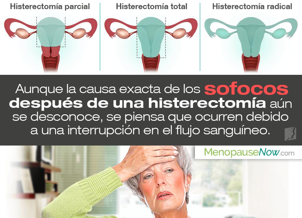 ¿Por qué ocurren sofocos después de una histerectomía?