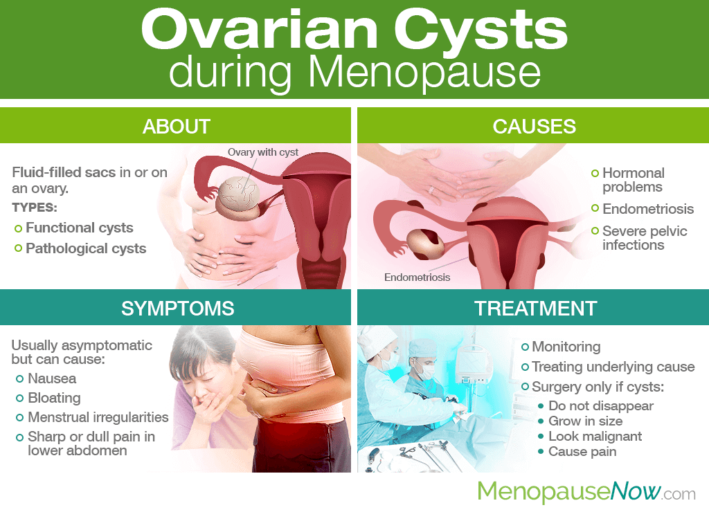 Ovarian Cysts during Menopause