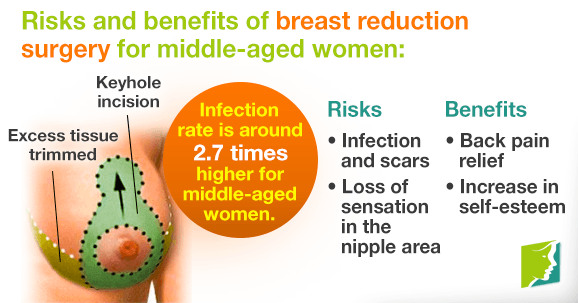 Breast Reduction Surgery for Middle-aged Women