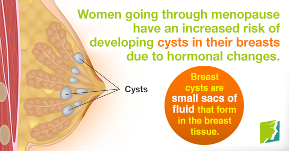 Breast cysts are small sacs of fluid that form in the breast tissue