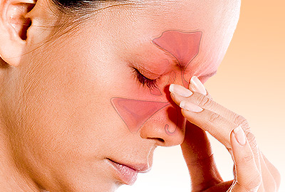 Sinus Migraines: All You Need to Know