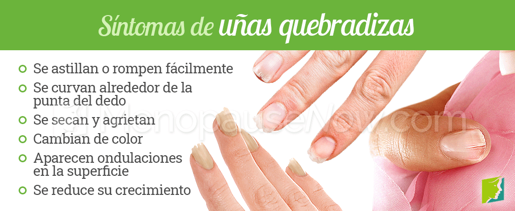 Síntomas de uñas quebradizas