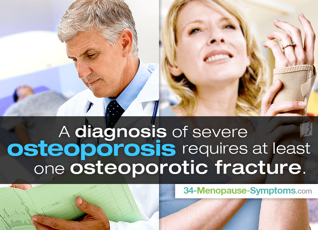 A diagnosis of severe osteoporosis requires at least one osteoporotic fracture