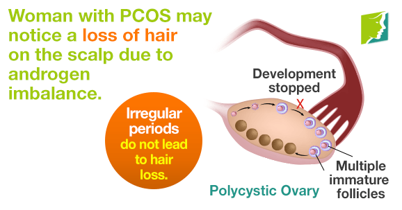 Irregular periods do not lead to hair loss