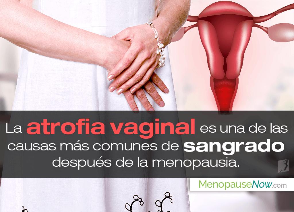 Causas de sangrado después de la menopausia