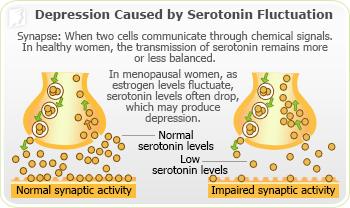 Causes of Depression 1