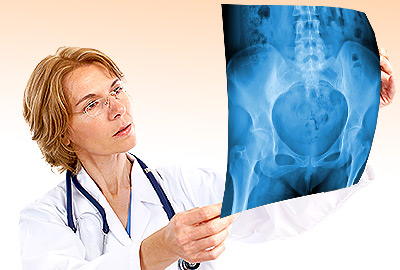 Dexa Scan for Bone Density and Osteoporosis