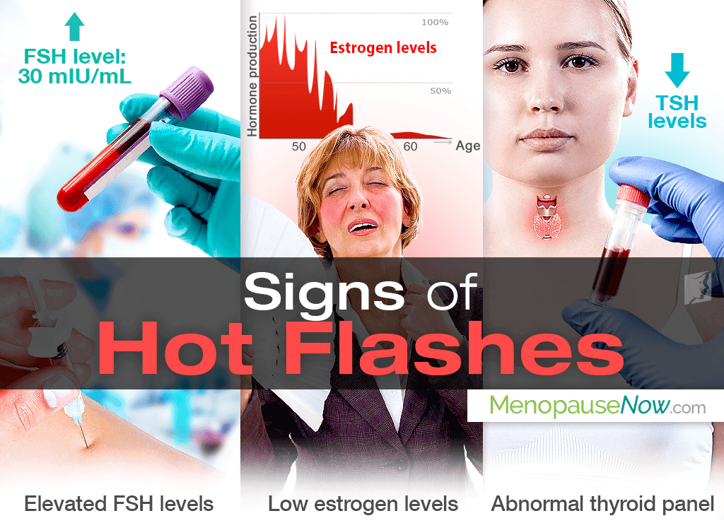 signs of hot flashes