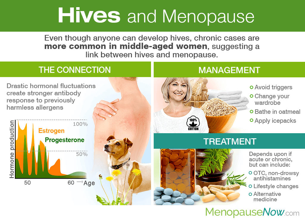 Hives and Menopause