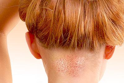Hair Transplant for Women FAQs