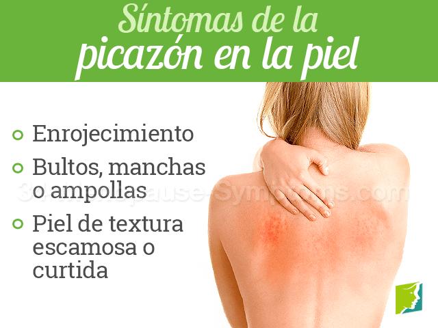 Síntomas de la picazón en la piel