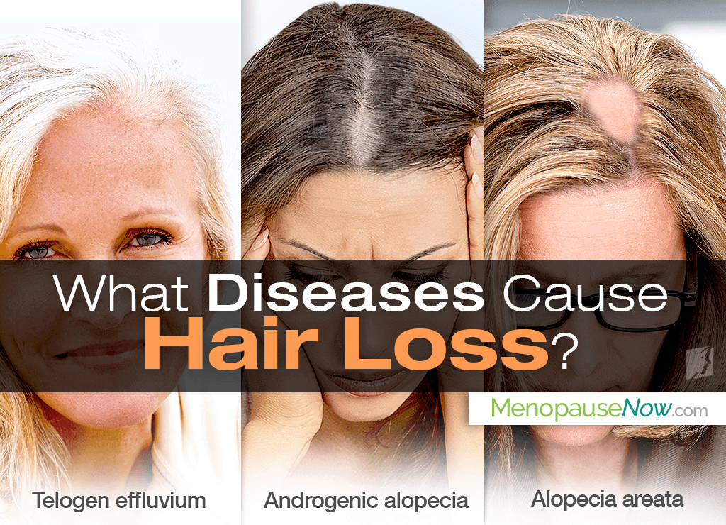 hair loss disease