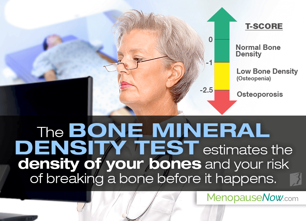 Bone Density Results - T Score & Z Score