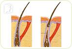 Female Hair Loss before Menopause