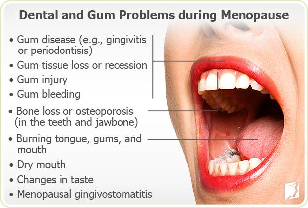 Dental and Gum Problems during menopause