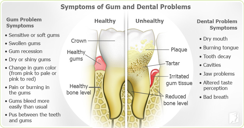 Symptoms of Gum and Dental Problems